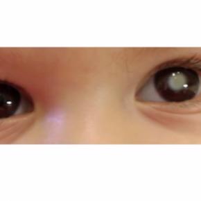Spot de sensibilisation au dépistage du rétinoblastome